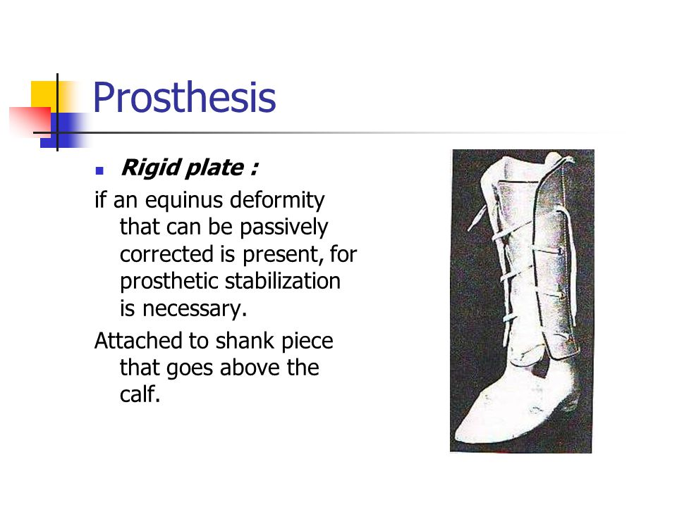 Prosthesis Rigid plate :