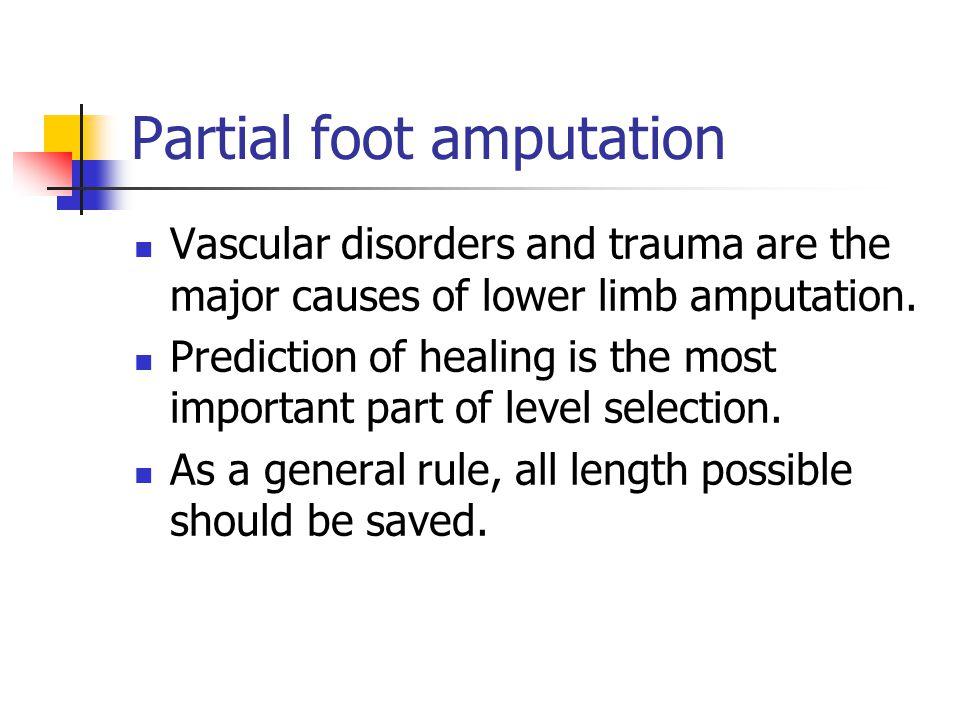 Partial foot amputation