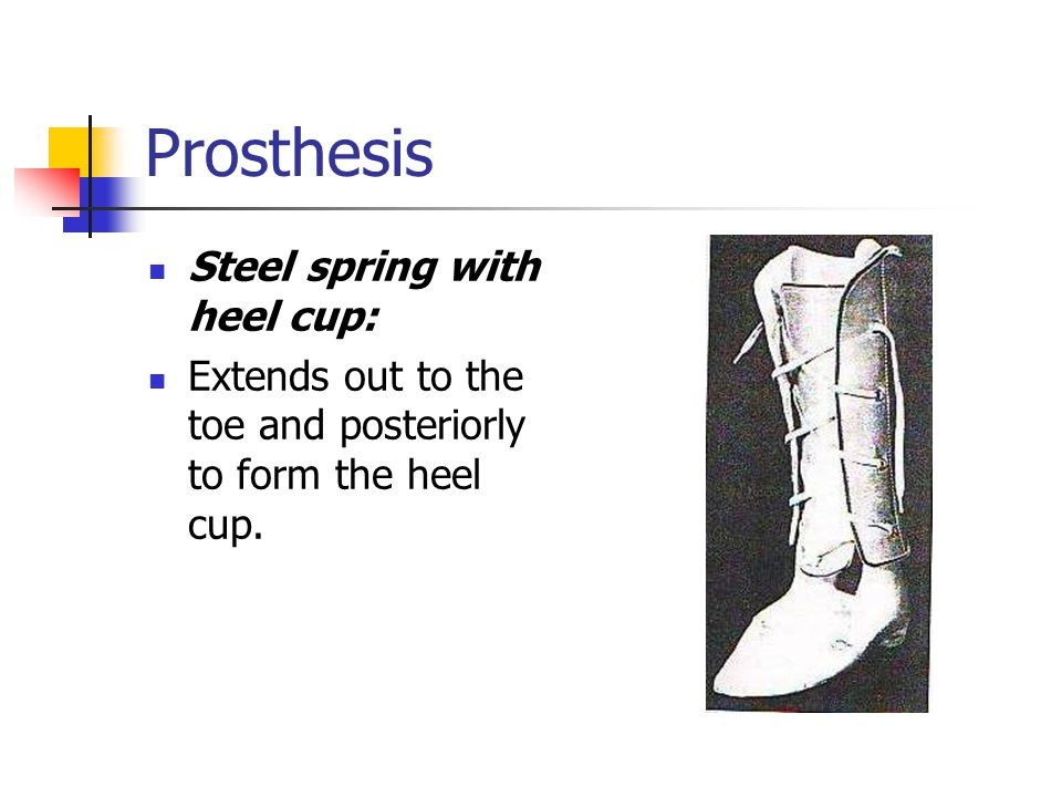 Prosthesis Steel spring with heel cup: