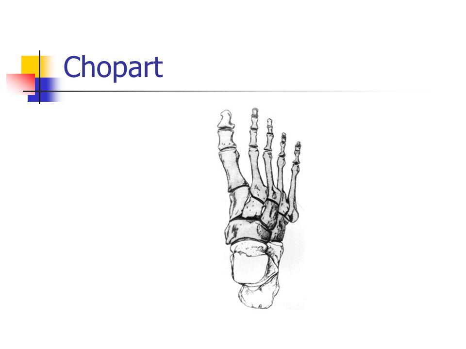 Chopart