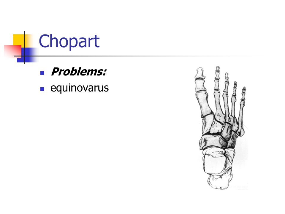 Chopart Problems: equinovarus