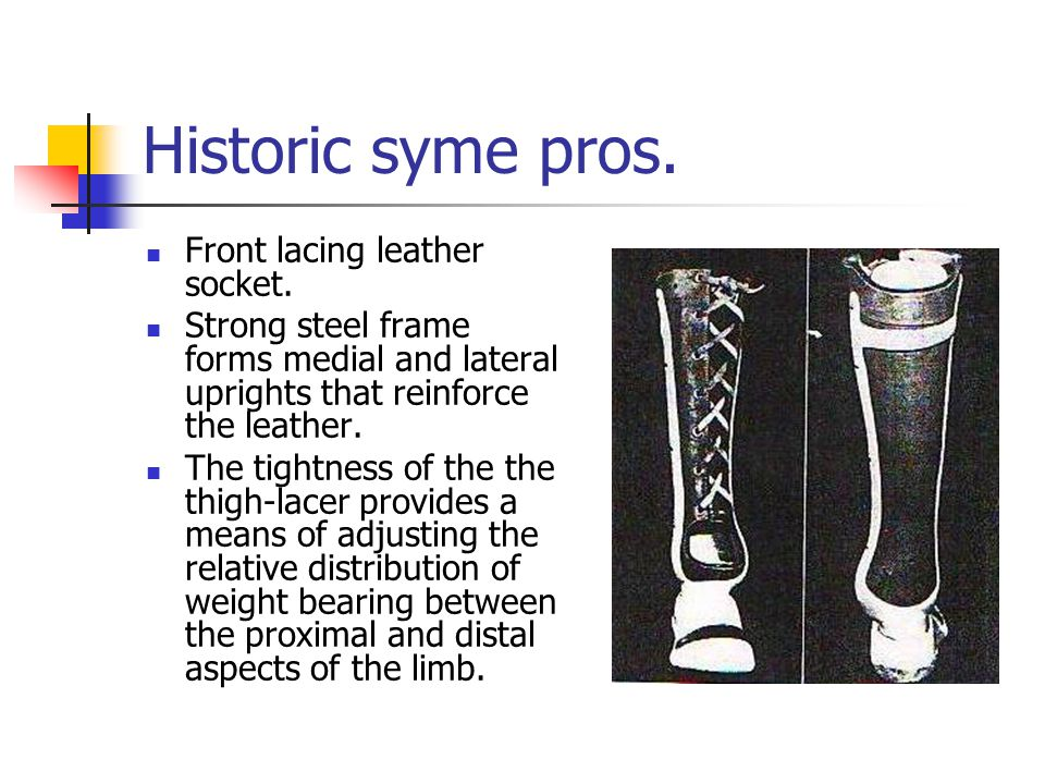 Historic syme pros. Front lacing leather socket.