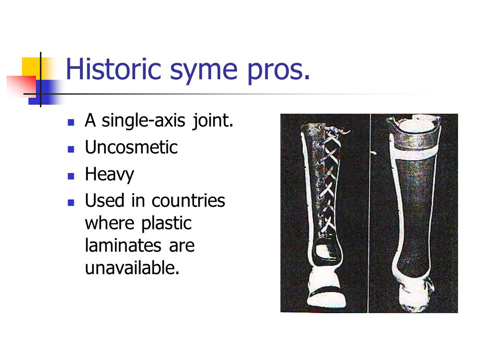 Historic syme pros. A single-axis joint. Uncosmetic Heavy