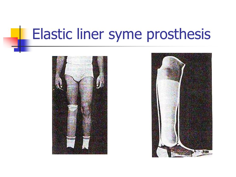 Elastic liner syme prosthesis