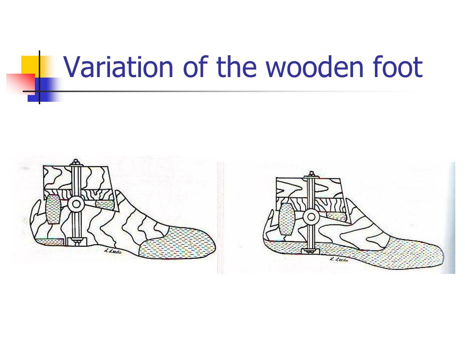 Variation of the wooden foot