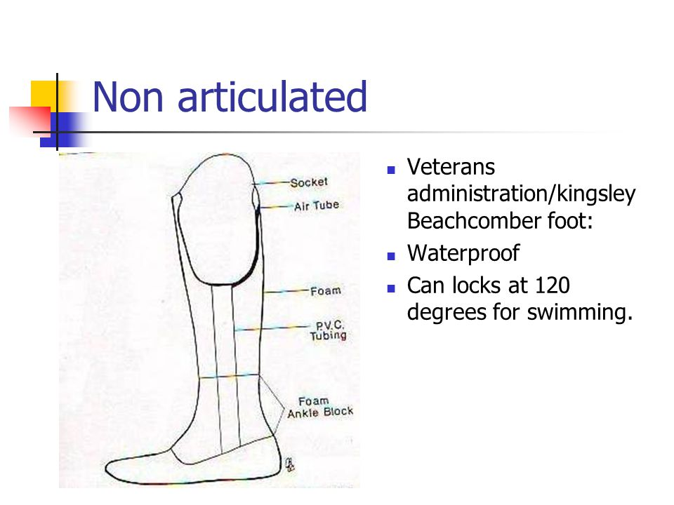 Non articulated Veterans administration/kingsley Beachcomber foot: