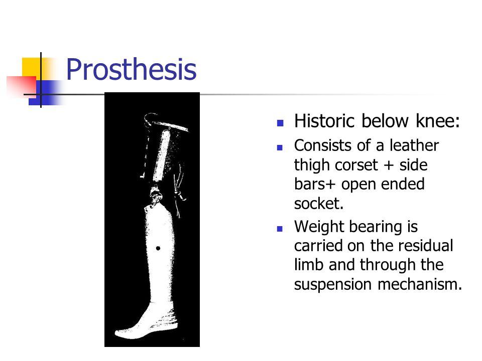 Prosthesis Historic below knee: