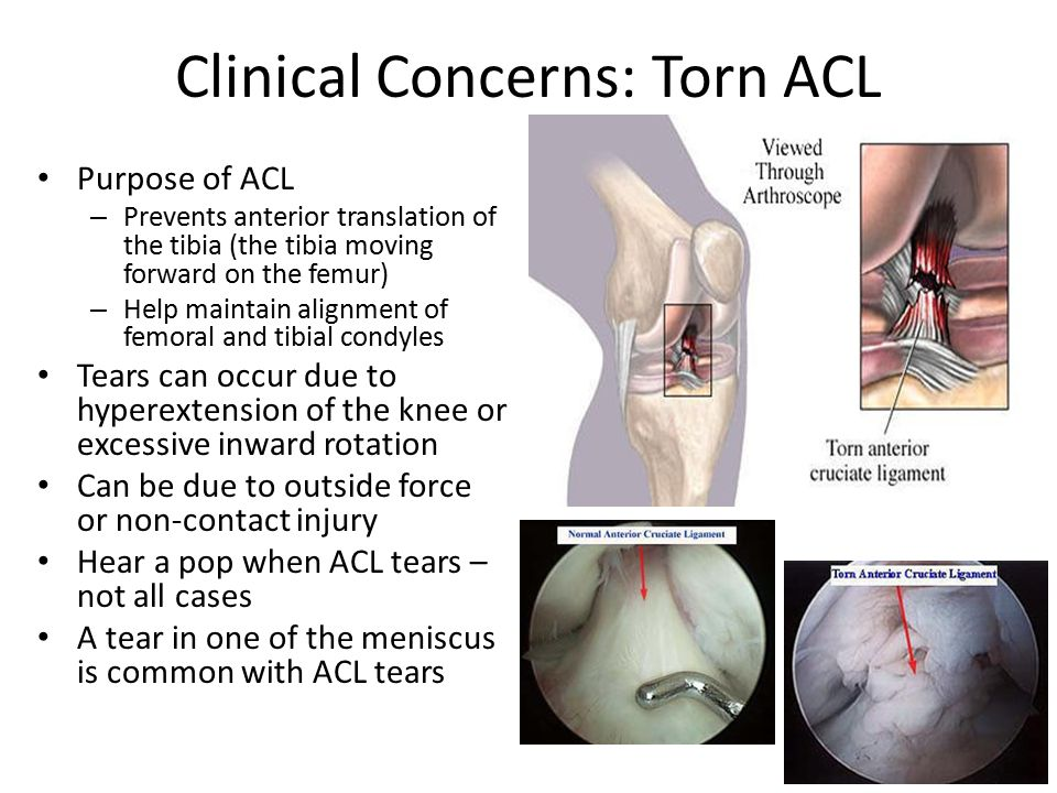 Clinical Concerns: Torn ACL