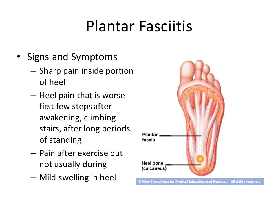 Plantar Fasciitis Signs and Symptoms Sharp pain inside portion of heel