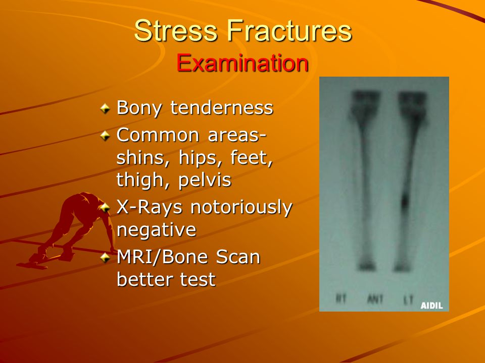 Stress Fractures Examination