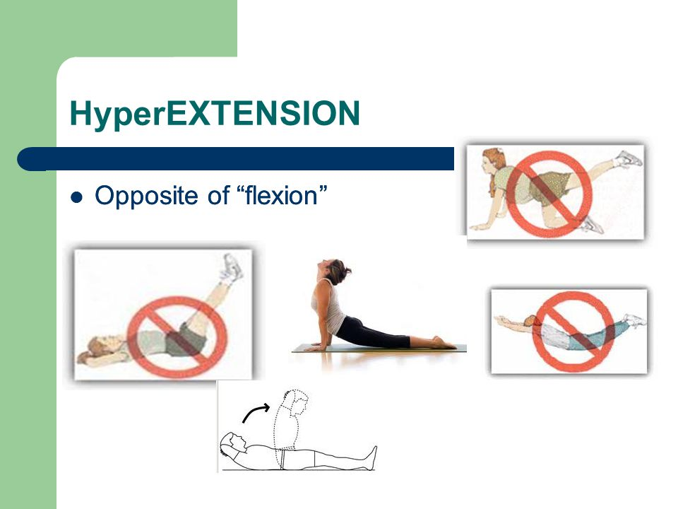 HyperEXTENSION Opposite of flexion Opposite of flexion