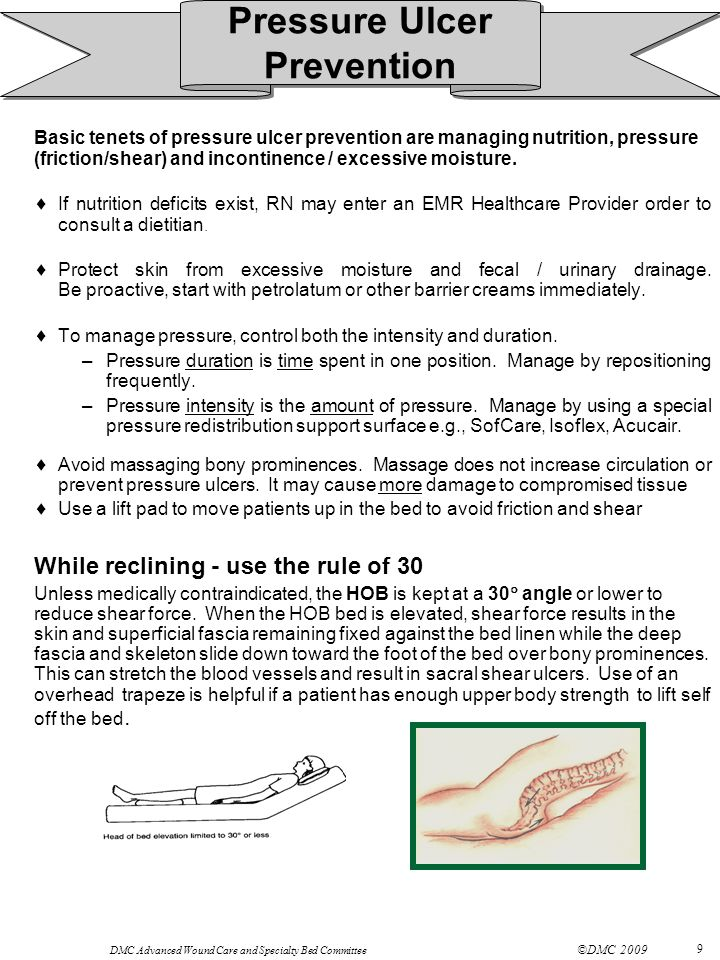 Pressure Ulcer Prevention While reclining - use the rule of 30