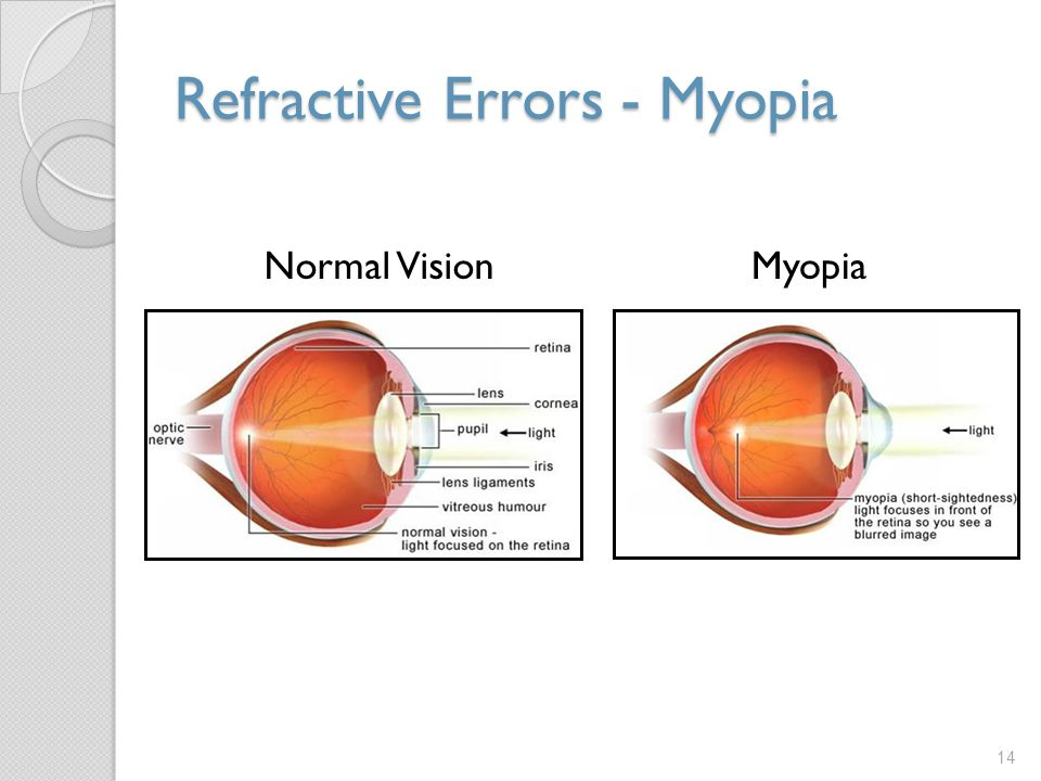 Refractive Errors - Myopia