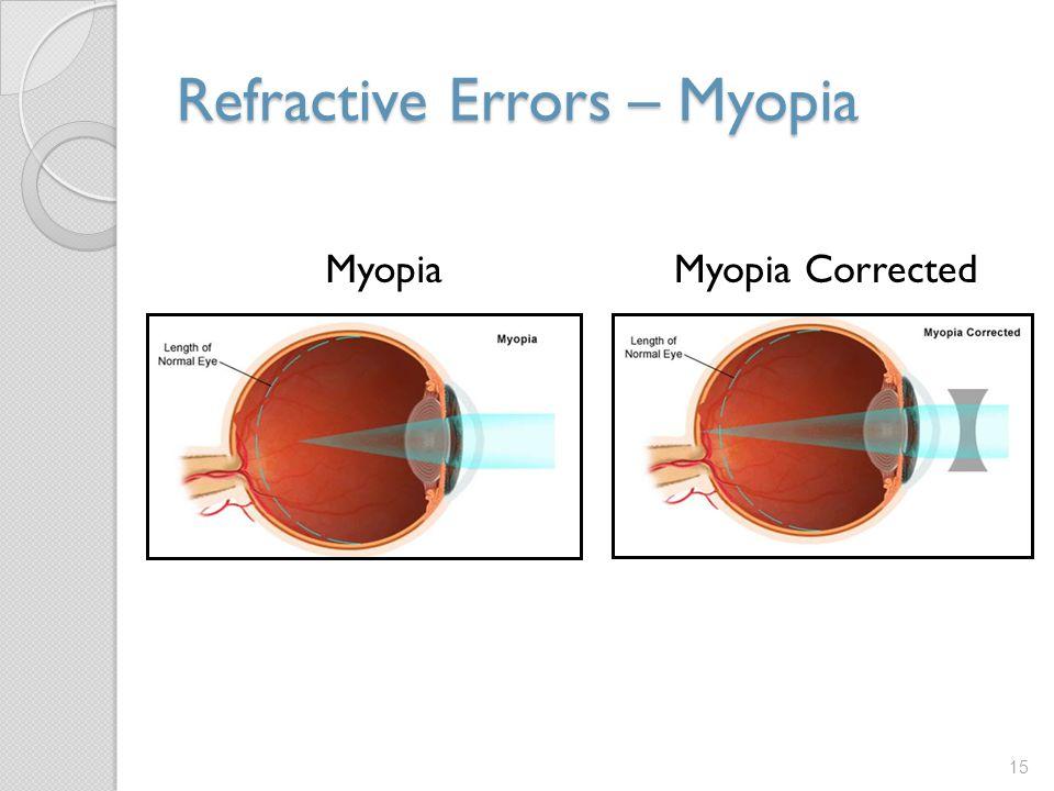 Refractive Errors – Myopia