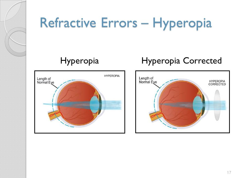 Refractive Errors – Hyperopia