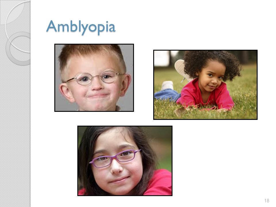 Amblyopia Amblyopia, or lazy eye can be difficult to detect, especially in children.