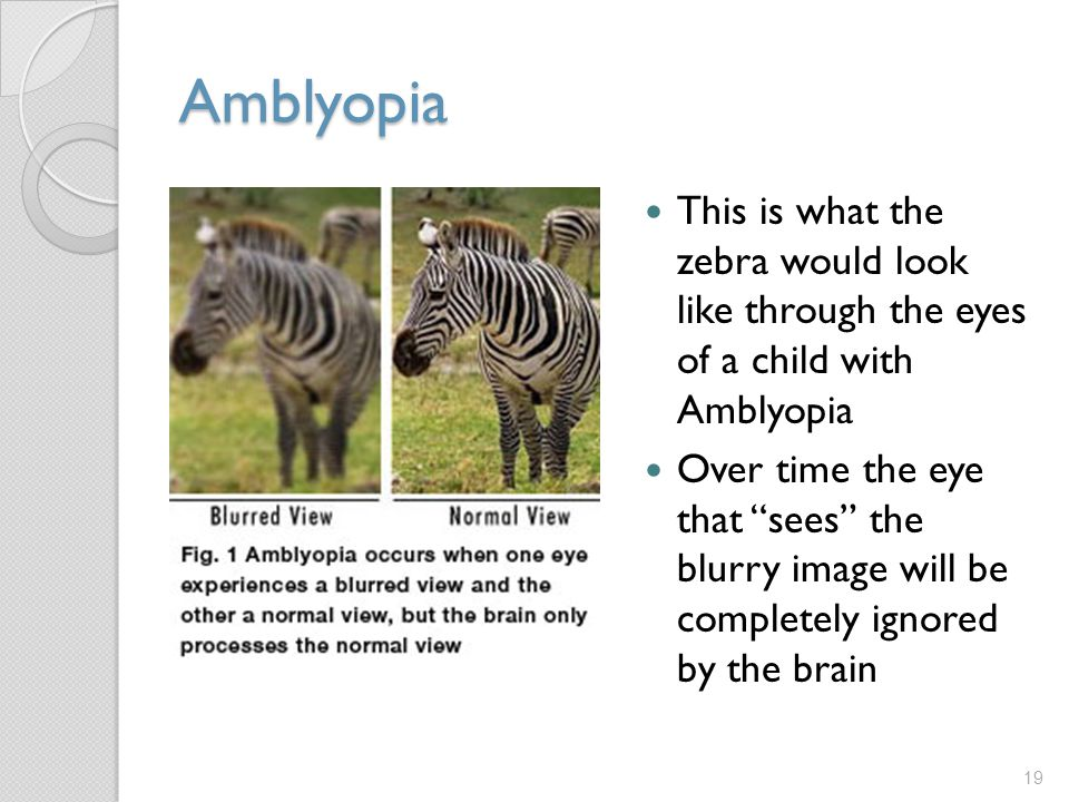 Amblyopia This is what the zebra would look like through the eyes of a child with Amblyopia.