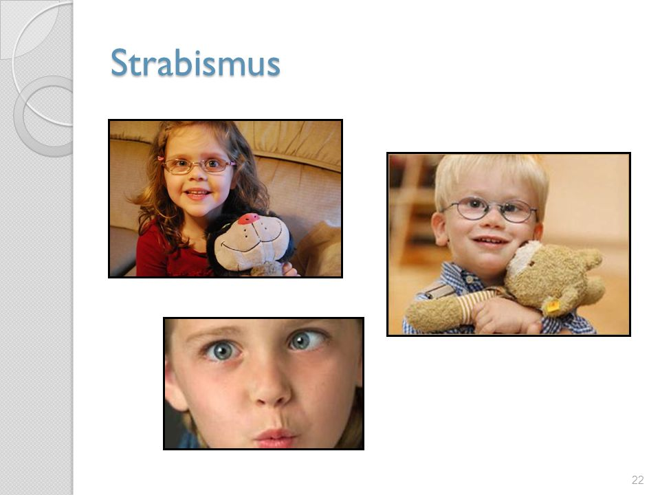 Strabismus Strabismus is any misalignment of the eyes – in children, this can be very obvious or very subtle.