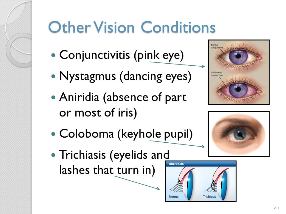 problems of puils in the absence List of 145 causes of dilated pupils, alternative diagnoses, rare causes, misdiagnoses, patient stories, and much more.