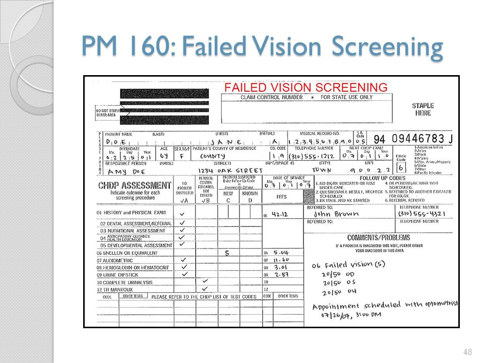 PM 160: Failed Vision Screening
