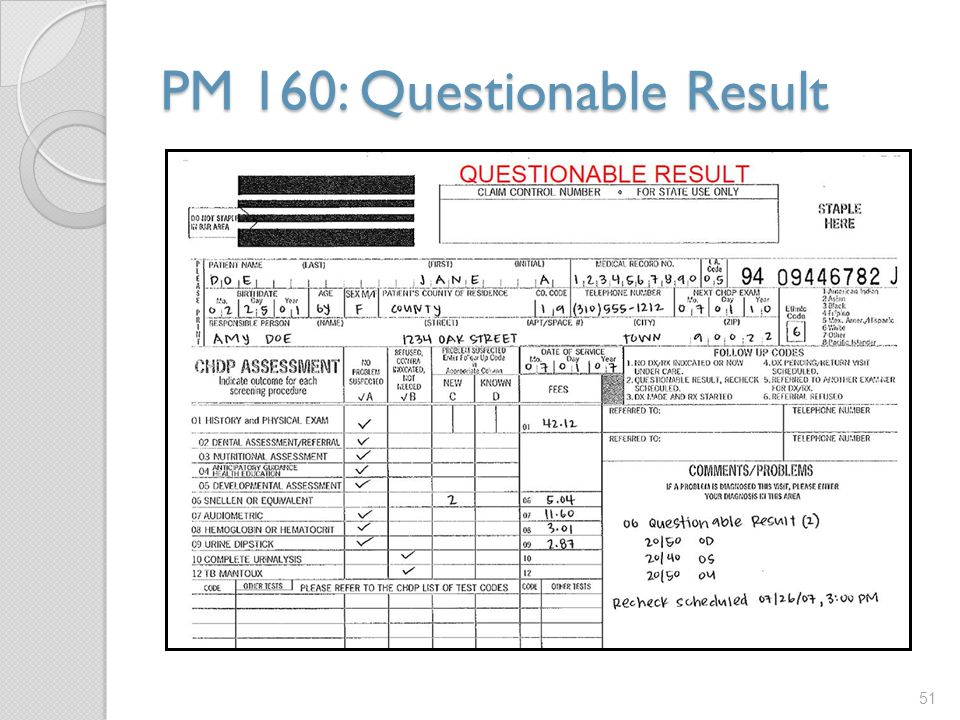 PM 160: Questionable Result