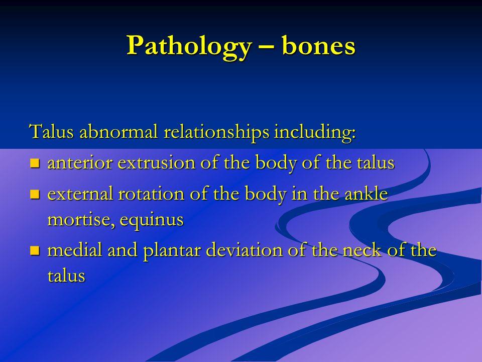 Pathology – bones Talus abnormal relationships including: