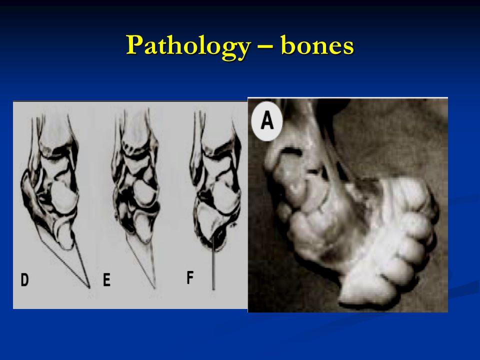 Pathology – bones