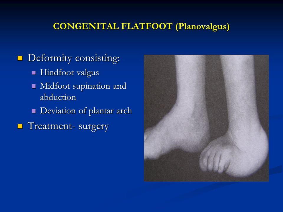 CONGENITAL FLATFOOT (Planovalgus)