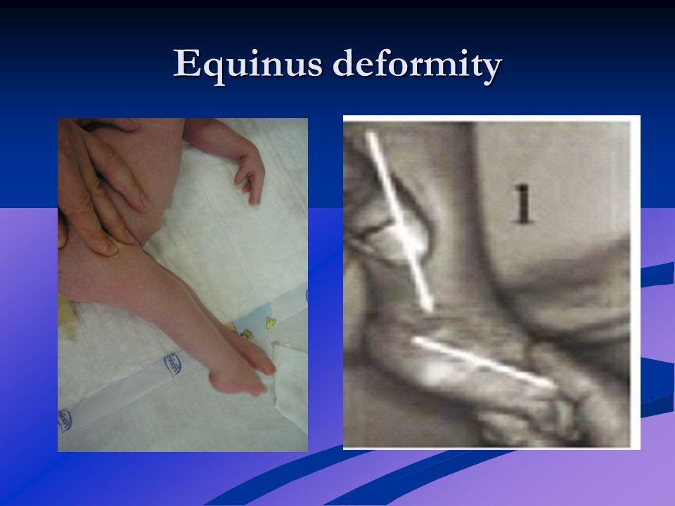 Equinus deformity