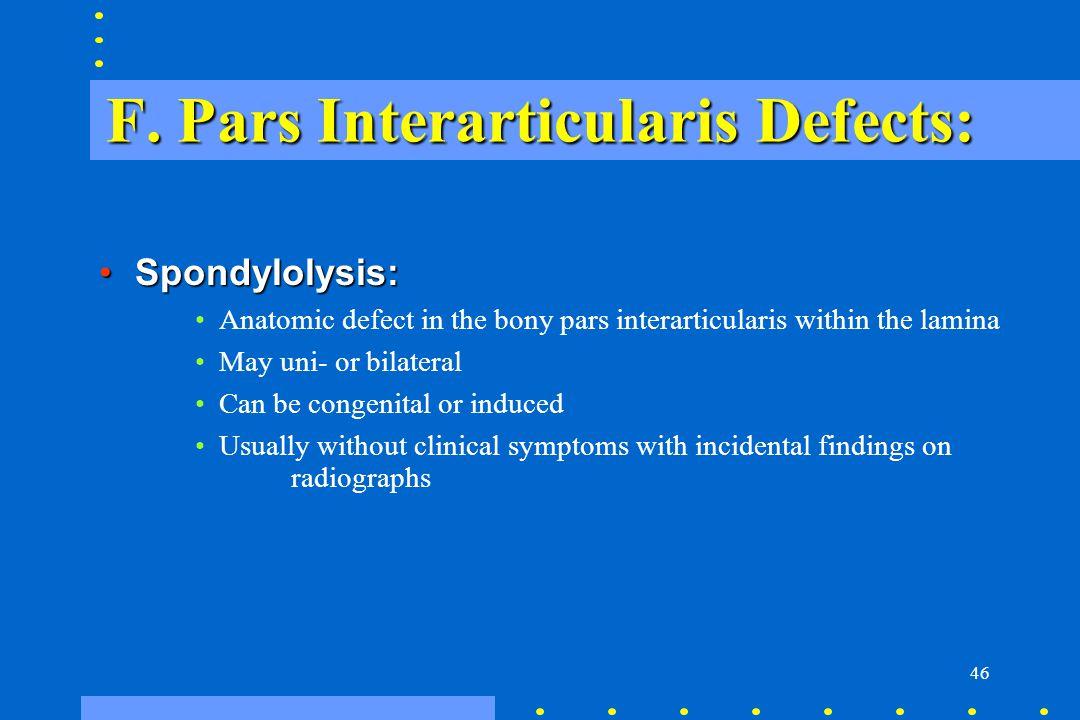 F. Pars Interarticularis Defects: