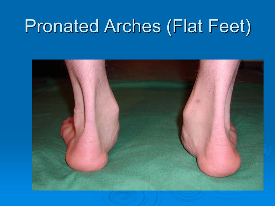 Pronated Arches (Flat Feet)