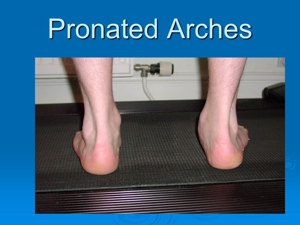 Pronated Arches