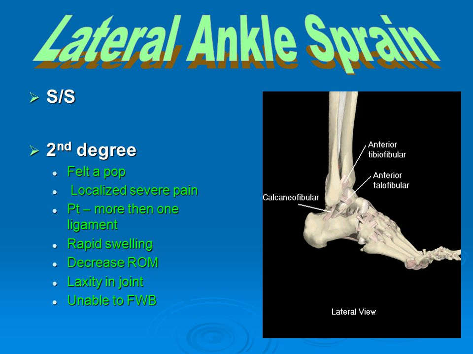 Lateral Ankle Sprain S/S 2nd degree Felt a pop Localized severe pain