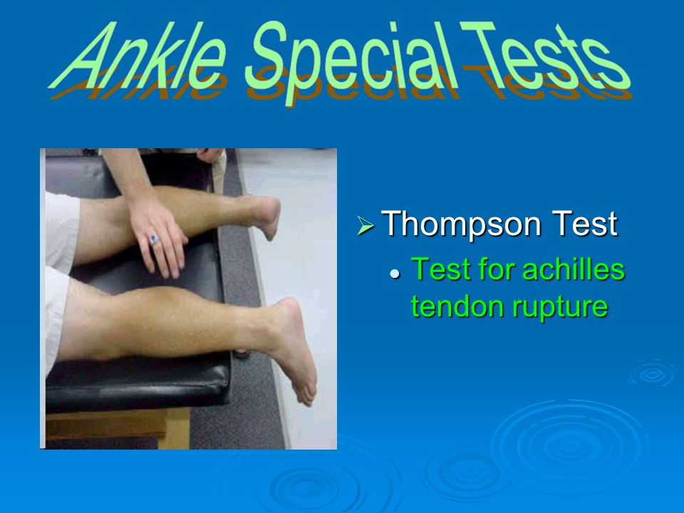 Ankle Special Tests Thompson Test Test for achilles tendon rupture