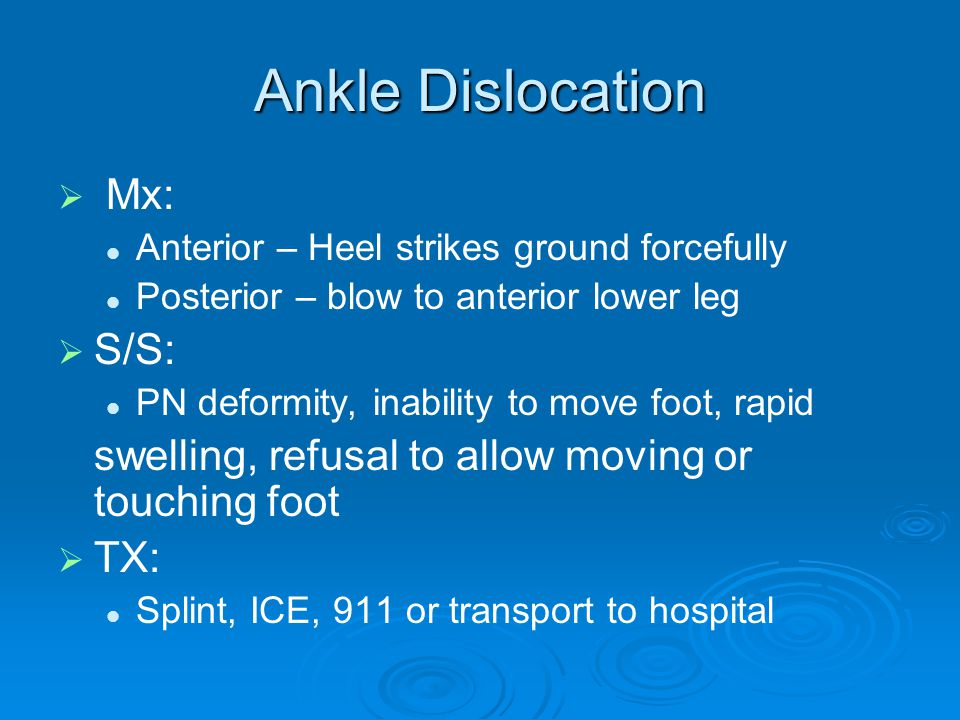 Ankle Dislocation Mx: S/S: