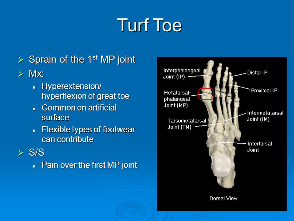 Turf Toe Sprain of the 1st MP joint Mx: S/S