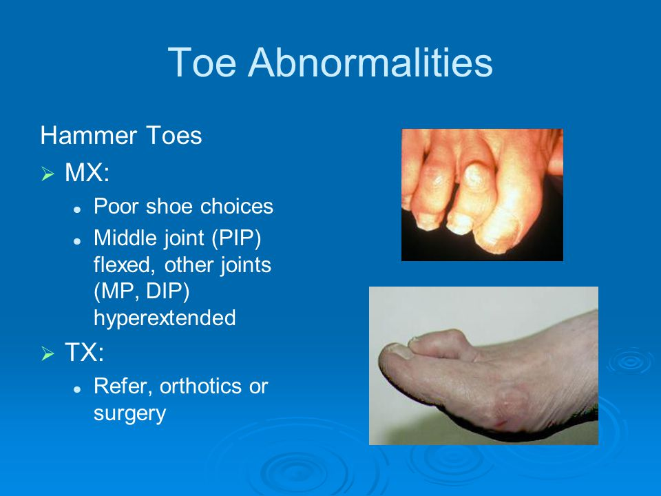 Toe Abnormalities Hammer Toes MX: TX: Poor shoe choices