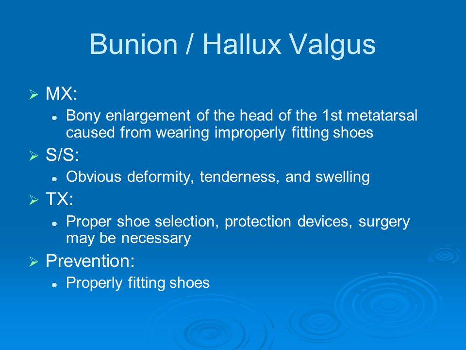 Bunion / Hallux Valgus MX: S/S: TX: Prevention: