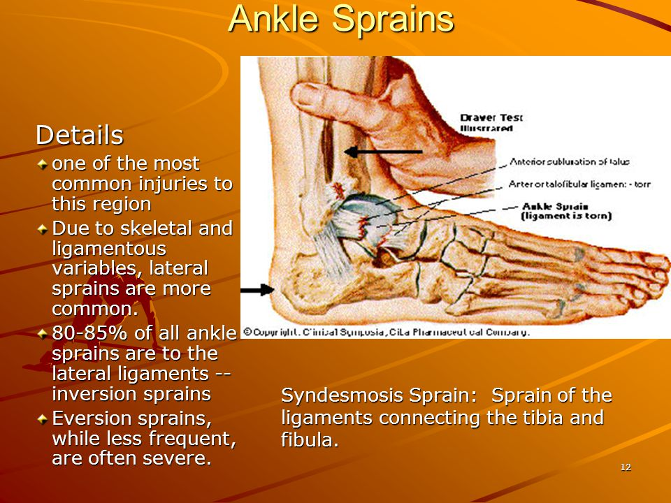Ankle Sprains Details one of the most common injuries to this region