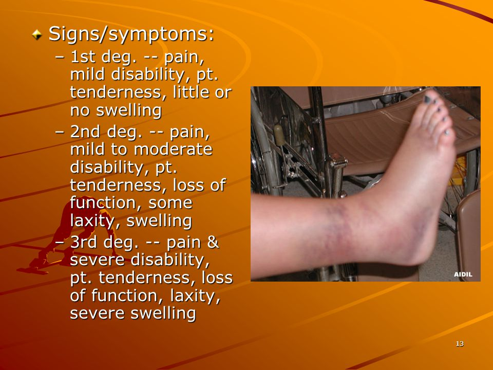 Signs/symptoms: 1st deg. -- pain, mild disability, pt. tenderness, little or no swelling.