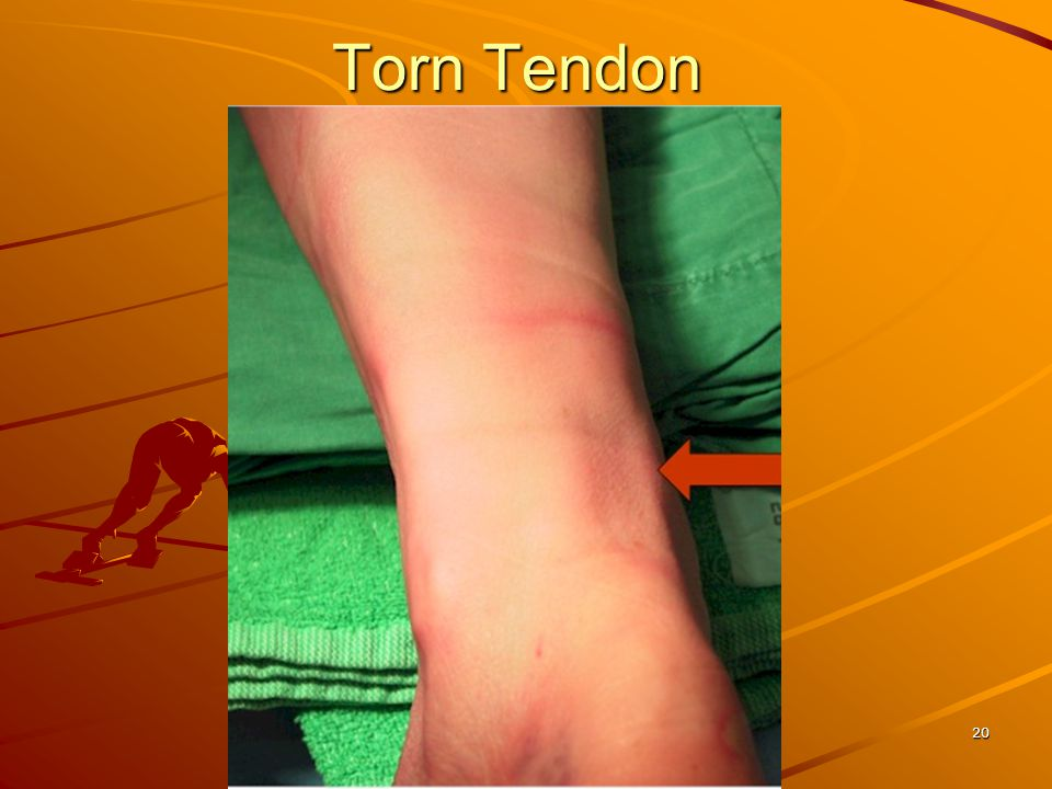 Torn Tendon