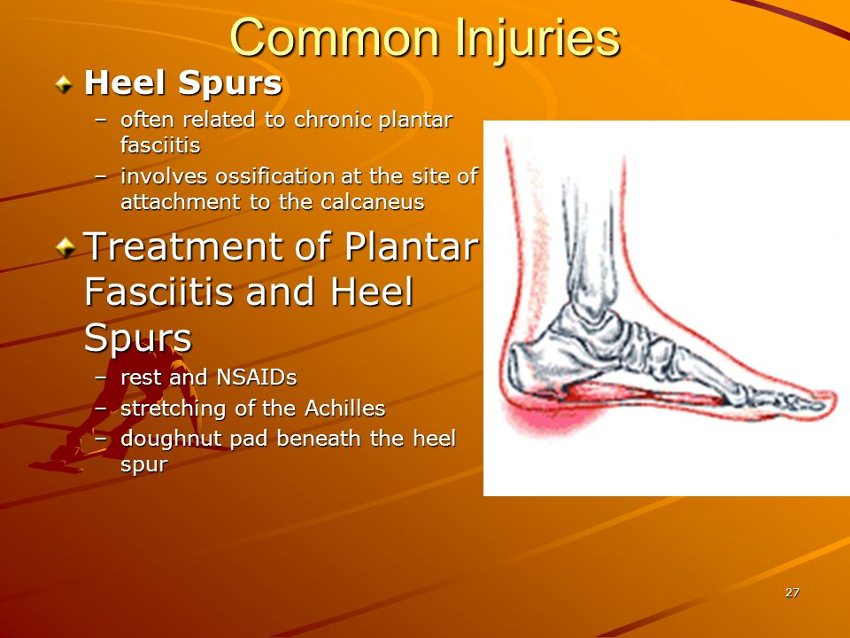 Common Injuries Treatment of Plantar Fasciitis and Heel Spurs