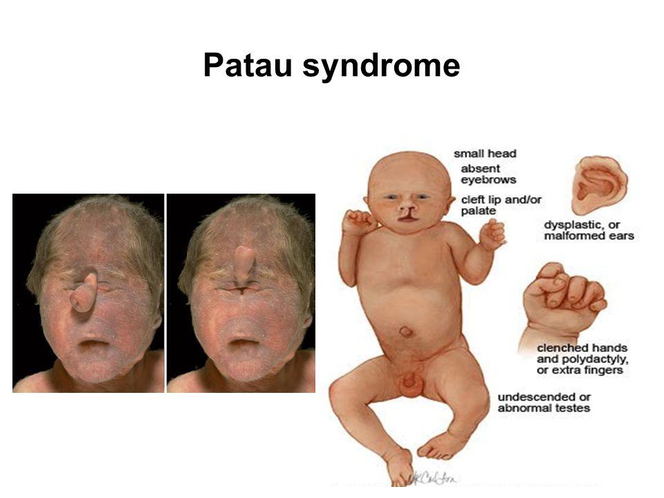 Patau syndrome