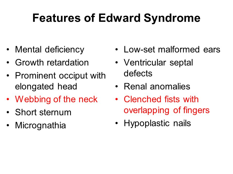 Features of Edward Syndrome