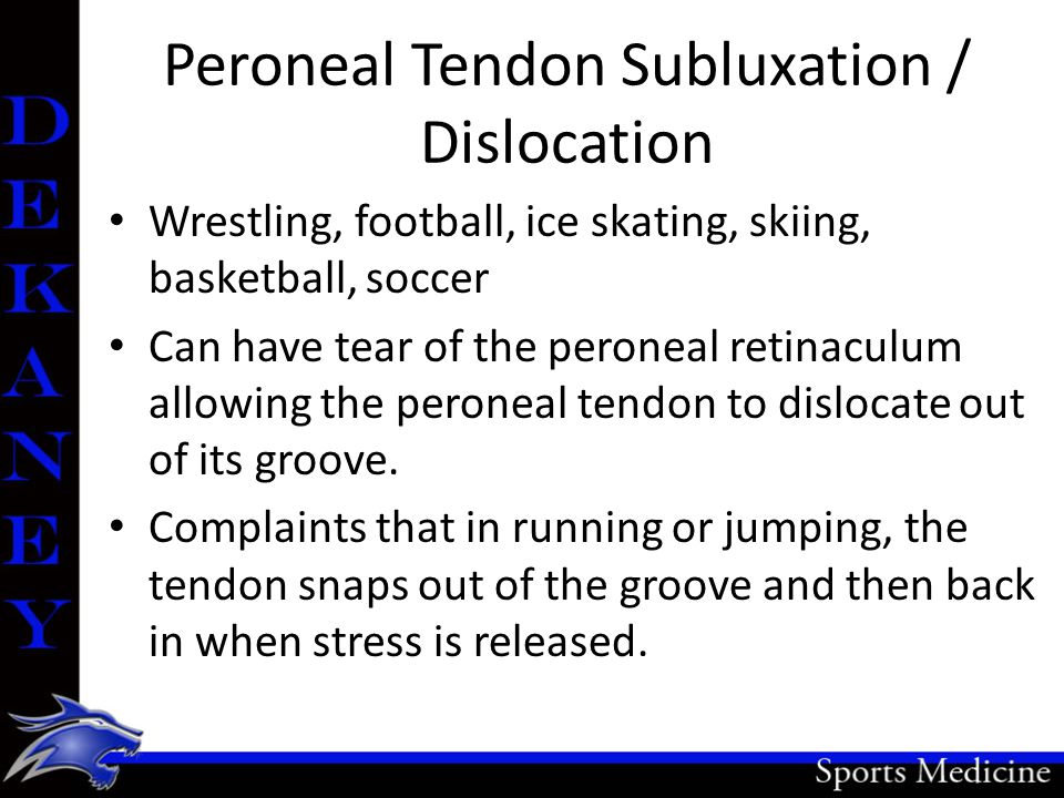 Peroneal Tendon Subluxation / Dislocation