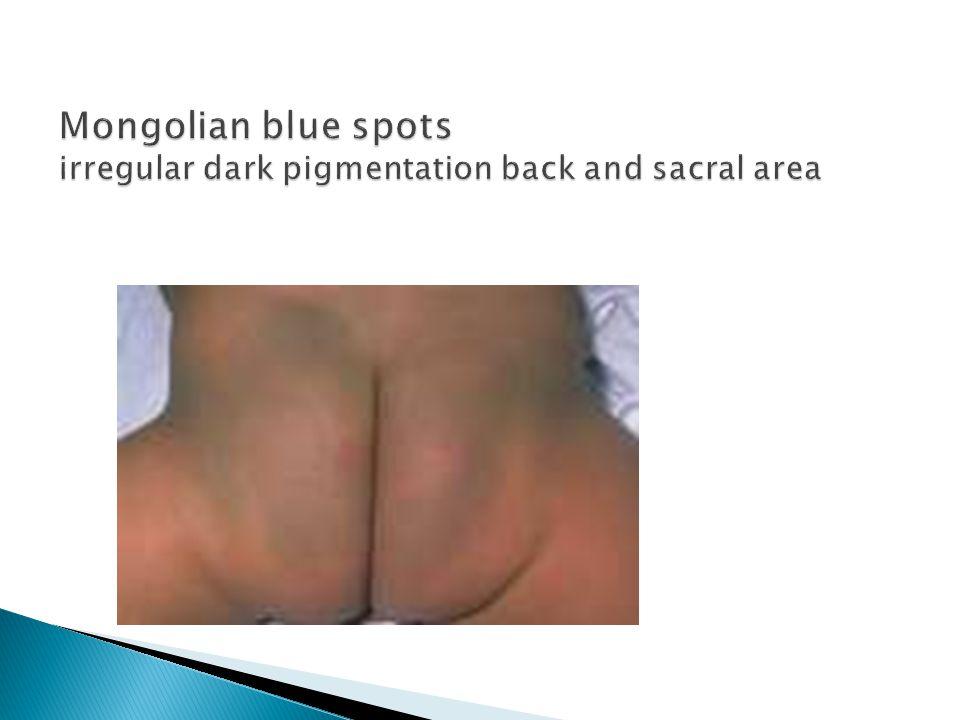 Mongolian blue spots irregular dark pigmentation back and sacral area