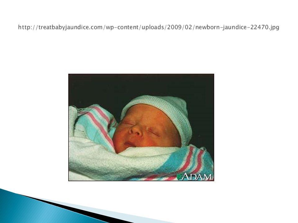 http://treatbabyjaundice.com/wp-content/uploads/2009/02/newborn-jaundice-22470.jpg