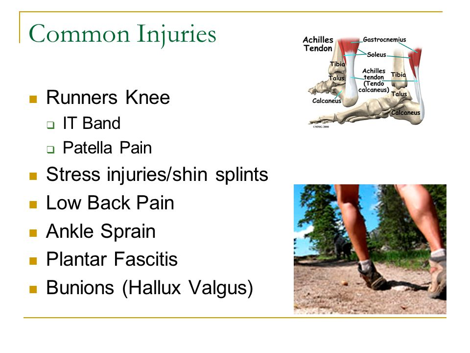 Common Injuries Runners Knee Stress injuries/shin splints