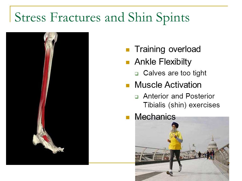 Stress Fractures and Shin Spints