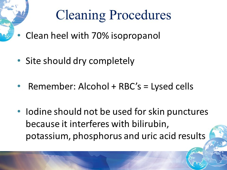 Cleaning Procedures Clean heel with 70% isopropanol